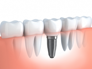 Dental implants can serve huge benefits for your overall health.