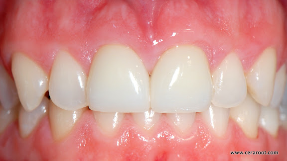 All ceramic implants provide a natural, more holistic solution to orthodontic care.
