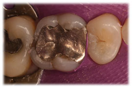 Amalgam fillings are a type of dental filling