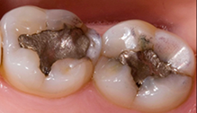 Onlays are fitted to accommodate the biting surface of a tooth and to restore function.