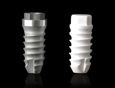 Titanium and ceramic implants provide strong protections for your teeth.