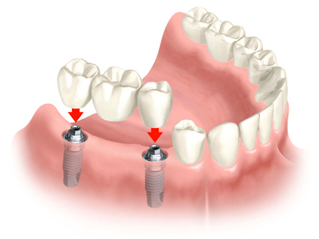 Dental bridges consist of two abutments flanking a pontic