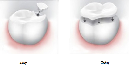 Inlays and Onlays are used to restore the function of a damaged filling.